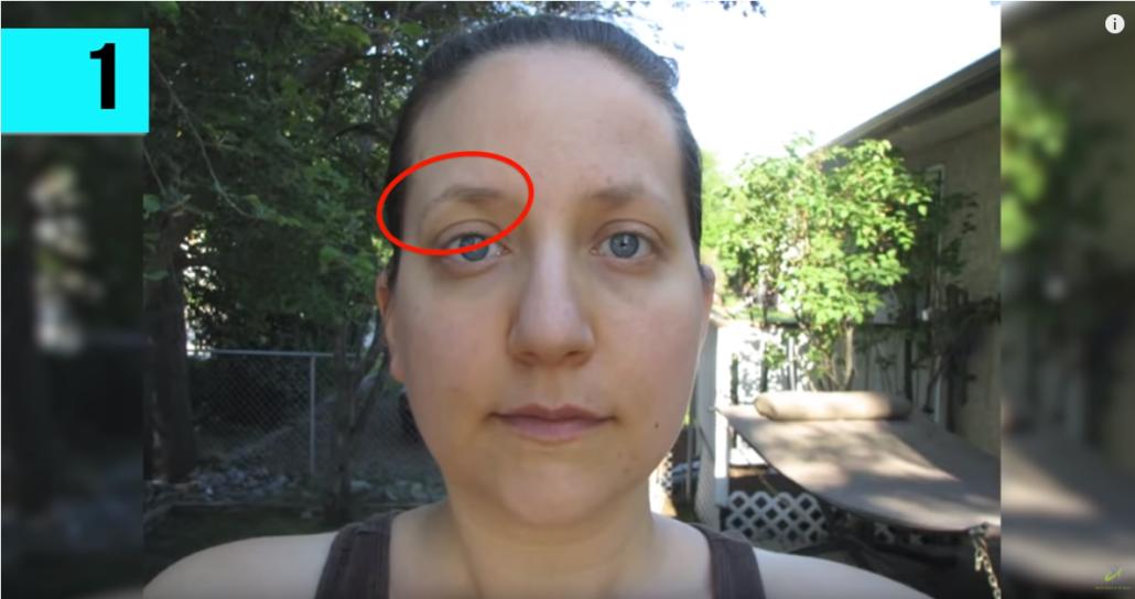 El primer síntoma de hipotiroidismo la ves en tus cejas.